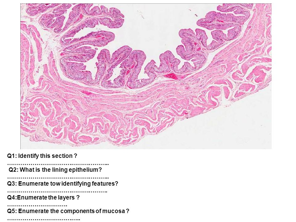 Q1: Identify this section ? …………………………………………….. Q2: What is the lining epithelium? …………………………………………….. Q3: Enumerate tow identifying features? …………………
