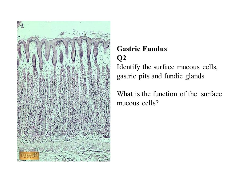 Gastric Fundus Q2 Identify the surface mucous cells, gastric pits and fundic glands.