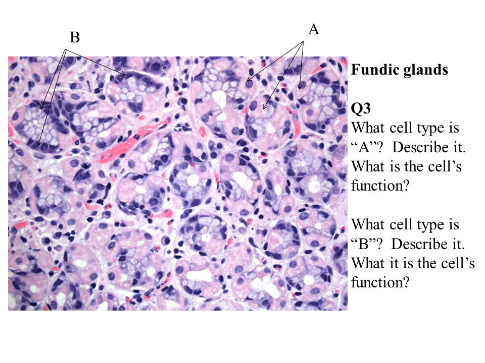 Fundic glands Q3 What cell type is A . Describe it.