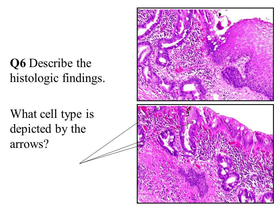 Q6 Describe the histologic findings. What cell type is depicted by the arrows