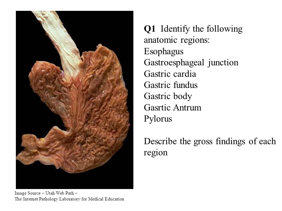 Image Source – Utah Web Path – The Internet Pathology Laboratory for Medical Education Q1 Identify the following anatomic regions: Esophagus Gastroesphageal junction Gastric cardia Gastric fundus Gastric body Gasrtic Antrum Pylorus Describe the gross findings of each region