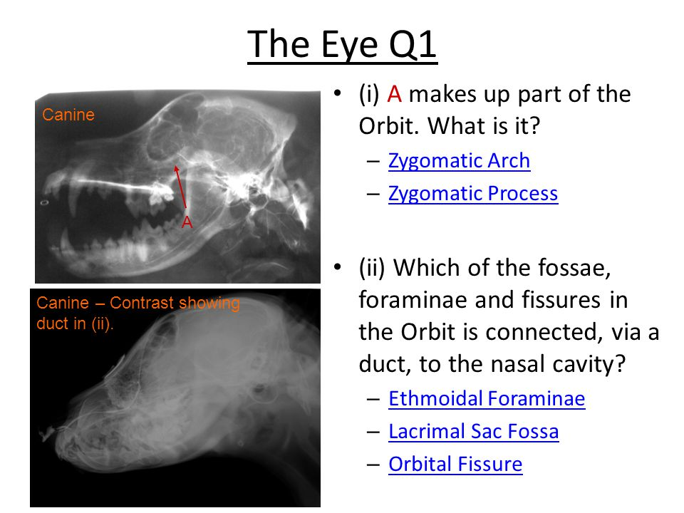 The Eye Q1 (i) A makes up part of the Orbit. What is it.