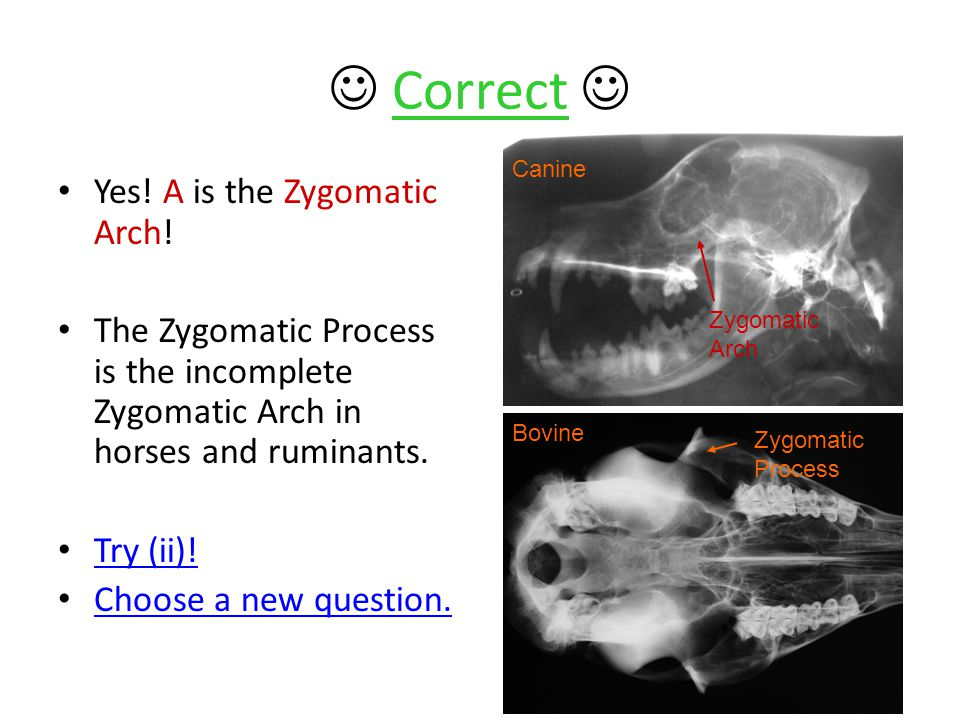 Correct Yes. A is the Zygomatic Arch.