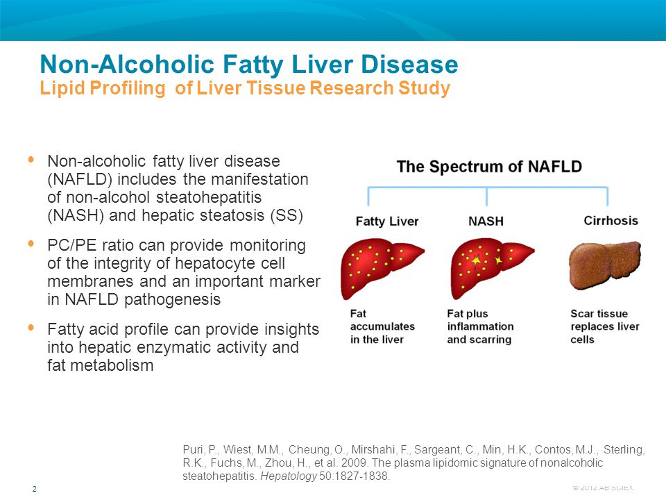 2 © 2012 AB SCIEX  Non-alcoholic fatty liver disease (NAFLD) includes the manifestation of non-alcohol steatohepatitis (NASH) and hepatic steatosis (