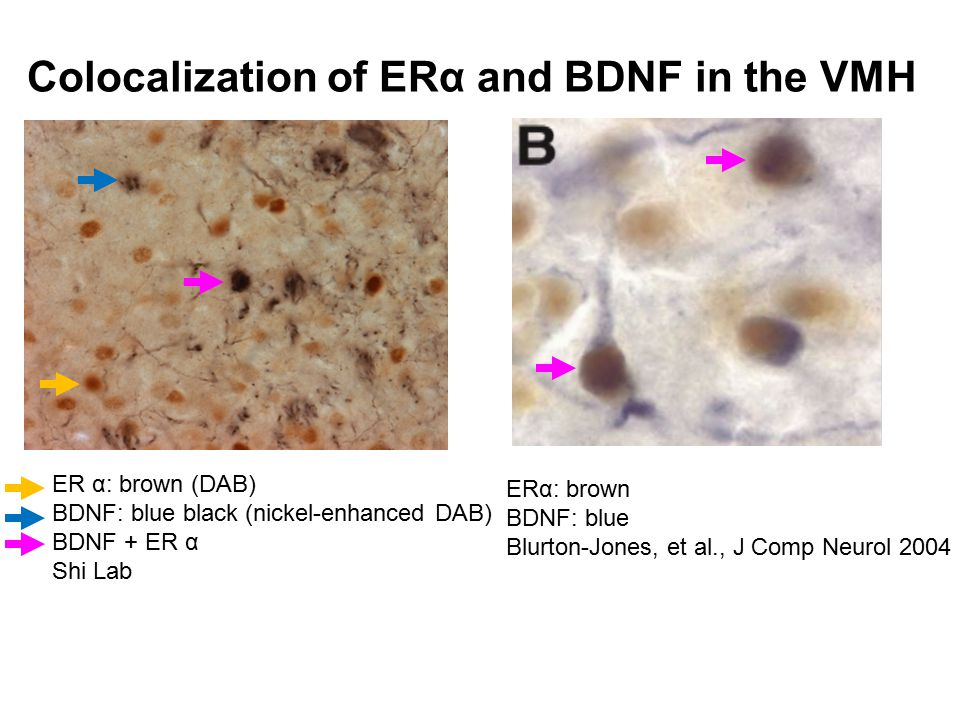 VMH 3V BDNF Leptin ARC estrogen POMC Expenditure Intake estradiol Potential regulation of BDNF by estradiol