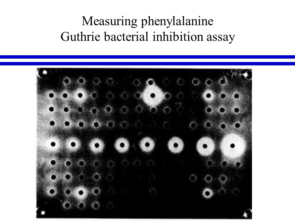 Measuring phenylalanine Guthrie bacterial inhibition assay