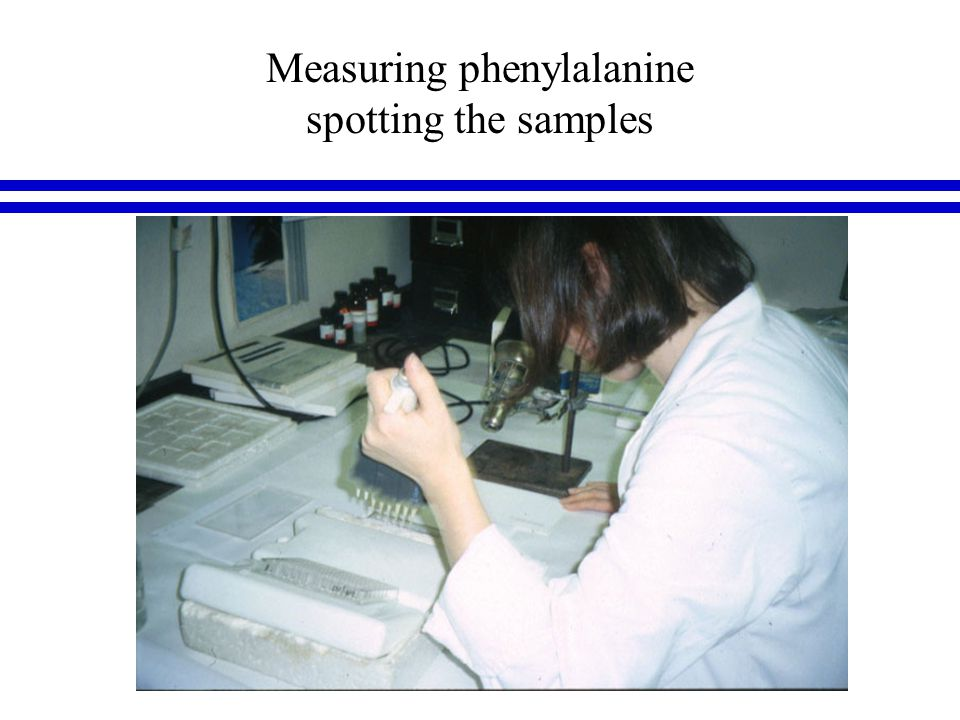 Measuring phenylalanine spotting the samples