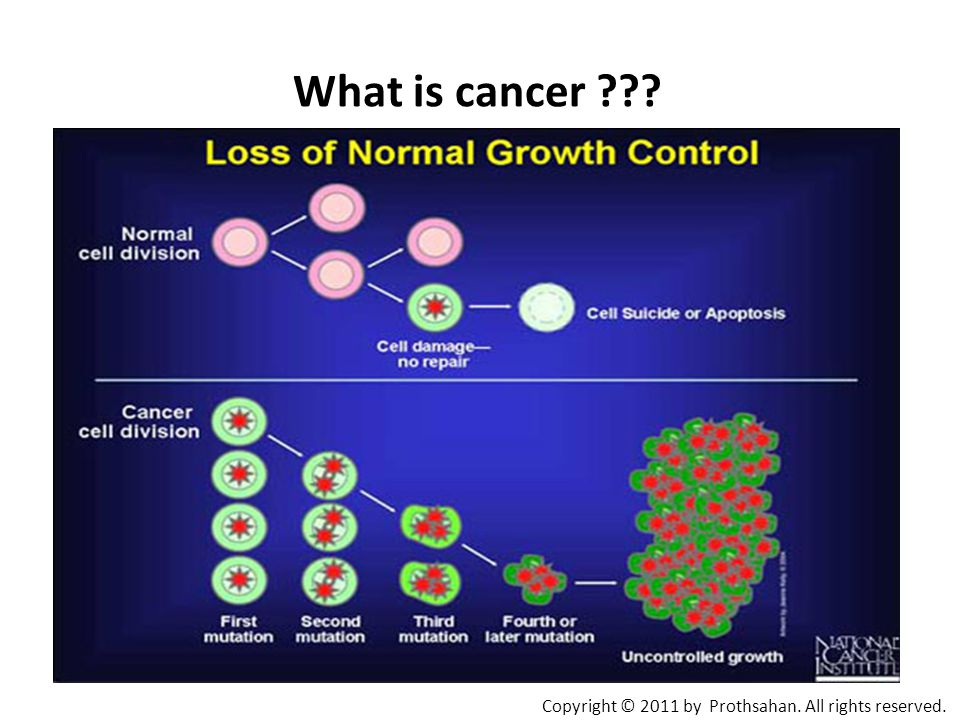 What is cancer Copyright © 2011 by Prothsahan. All rights reserved.
