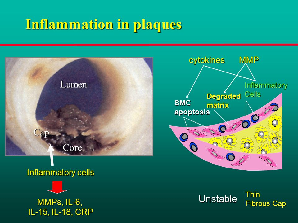 Inflammation in plaques Inflammatory cells MMPs, IL-6, IL-15, IL-18, CRP Lumen Core Cap Thin Fibrous Cap InflammatoryCells SMCapoptosis Degradedmatrix Unstable cytokinesMMP
