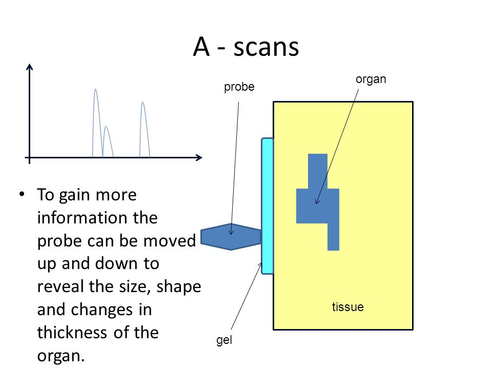 A - scans To gain more information the probe can be moved up and down to reveal the size, shape and changes in thickness of the organ. organ tissue pr