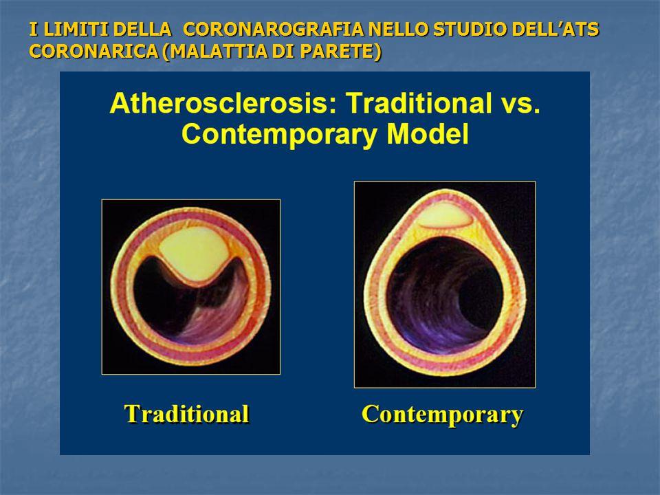 I LIMITI DELLA CORONAROGRAFIA NELLO STUDIO DELL'ATS CORONARICA (MALATTIA DI PARETE)