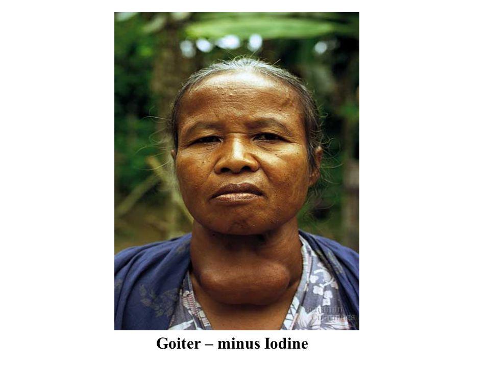 Goiter – minus Iodine