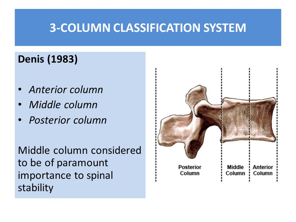 3-COLUMN CLASSIFICATION SYSTEM Denis (1983) Anterior column Middle column Posterior column Middle column considered to be of paramount importance to spinal stability