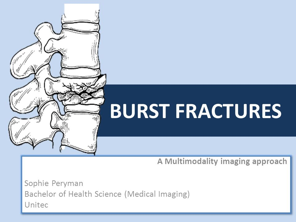BURST FRACTURES A Multimodality imaging approach Sophie Peryman Bachelor of Health Science (Medical Imaging) Unitec A Multimodality imaging approach Sophie Peryman Bachelor of Health Science (Medical Imaging) Unitec