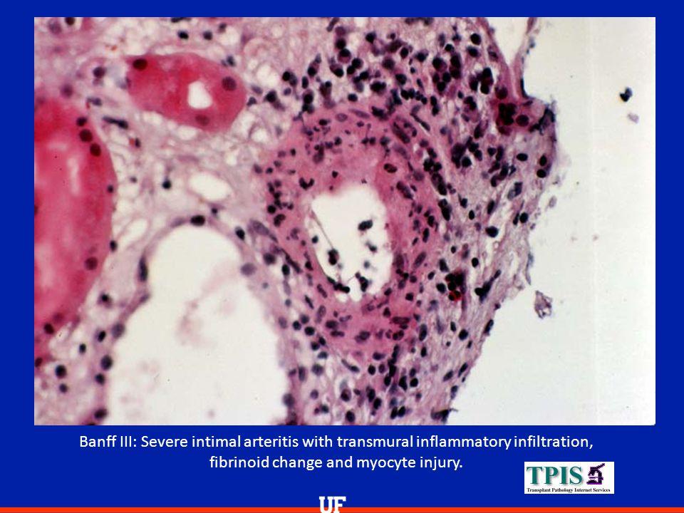 Banff III: Severe intimal arteritis with transmural inflammatory infiltration, fibrinoid change and myocyte injury.