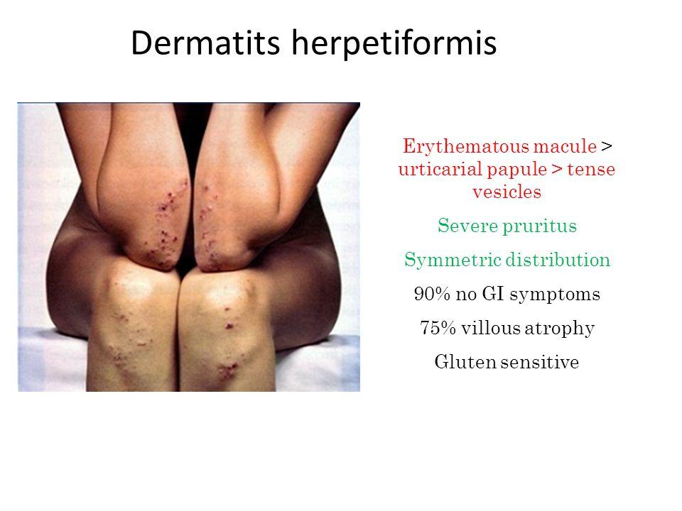 Dermatits herpetiformis Erythematous macule > urticarial papule > tense vesicles Severe pruritus Symmetric distribution 90% no GI symptoms 75% villous atrophy Gluten sensitive