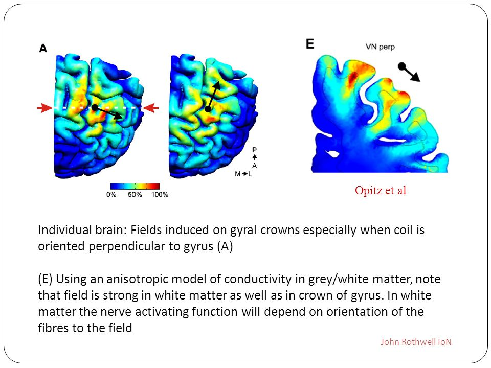Individual brain: Fields induced on gyral crowns especially when coil is oriented perpendicular to gyrus (A) (E) Using an anisotropic model of conduct