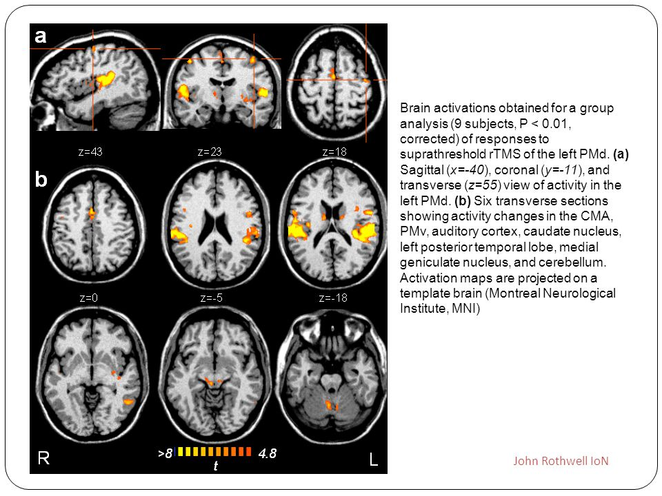 Brain activations obtained for a group analysis (9 subjects, P < 0.01, corrected) of responses to suprathreshold rTMS of the left PMd. (a) Sagittal (x