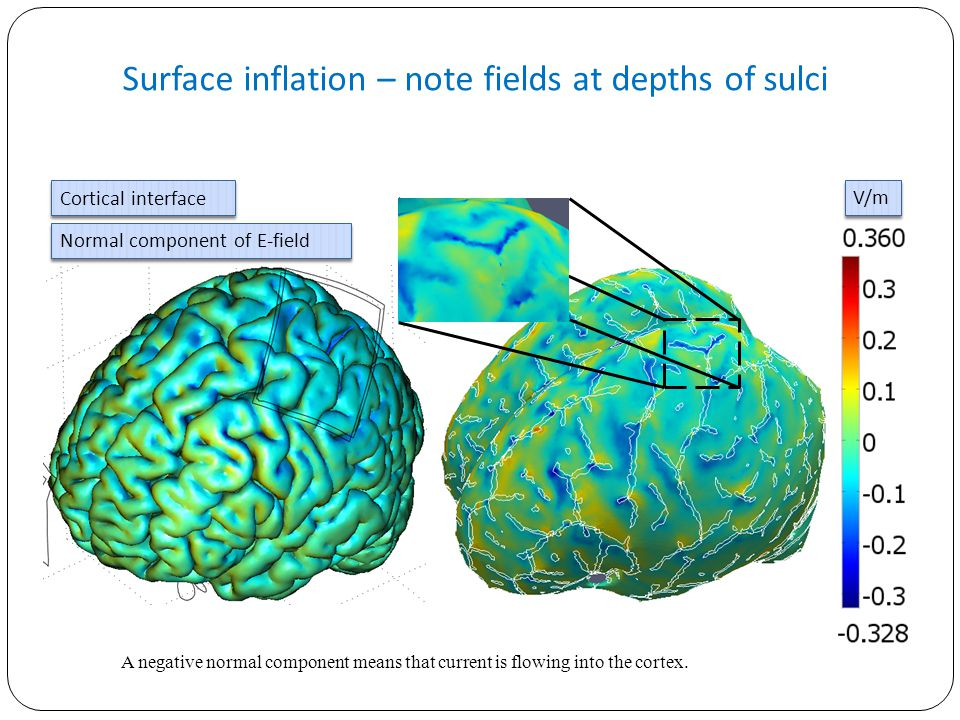 Surface inflation – note fields at depths of sulci Cortical interface Normal component of E-field V/m A negative normal component means that current i