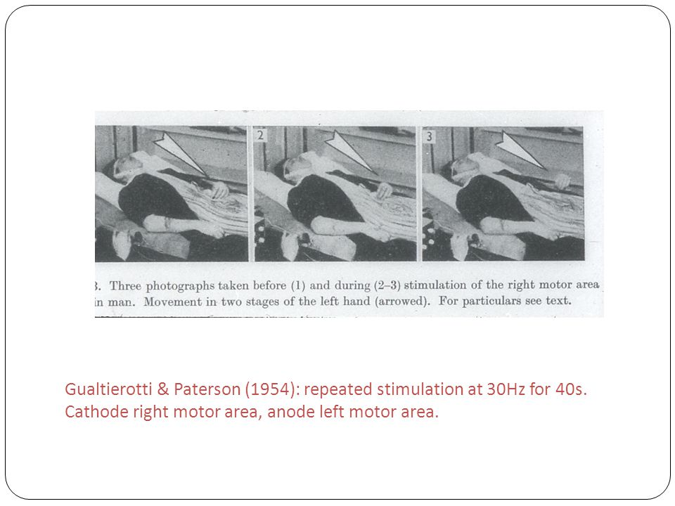 Gualtierotti & Paterson (1954): repeated stimulation at 30Hz for 40s. Cathode right motor area, anode left motor area.