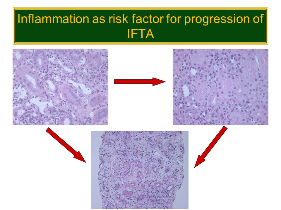 Inflammation as risk factor for progression of IFTA