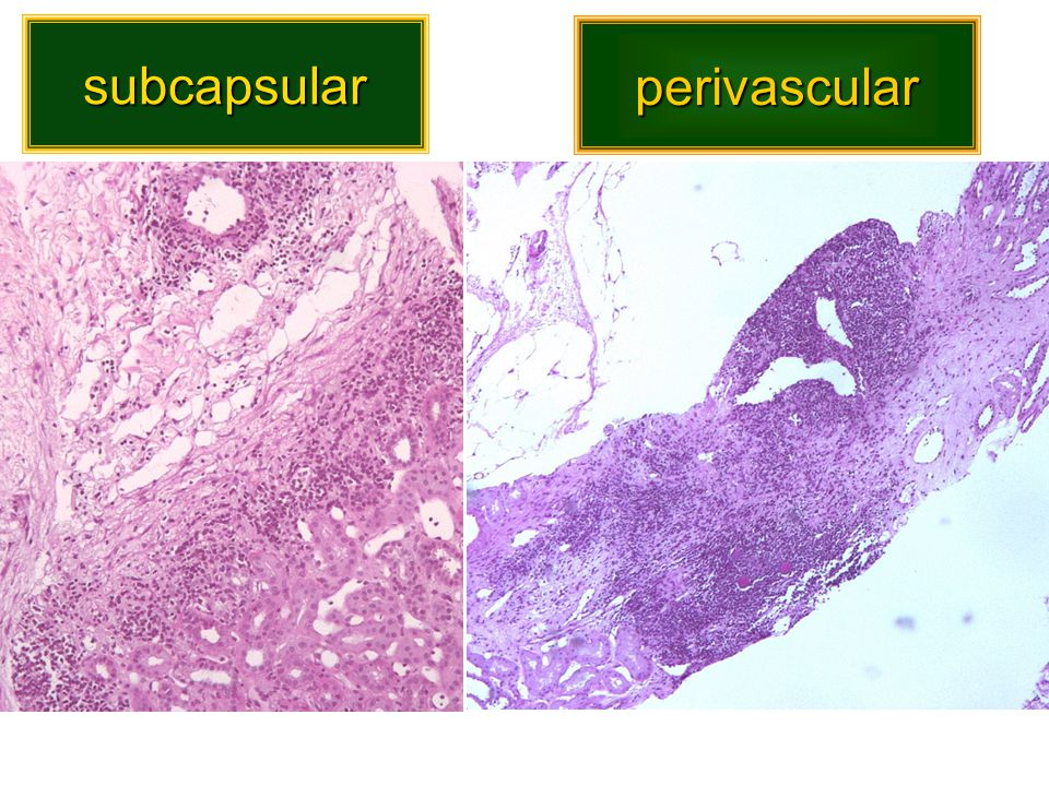 Scoring inflammation in renal allograft biopsies 60% IFTA compartment 40% non-scarred compartment 100% Cortex relative scoring according to current Banff rules 25% = Banff i-score 1 67% i-IFTA 5% 3% 5% absolute scoring 40% i-IFTA 10% i-Banff nodular perivascular subcapsular