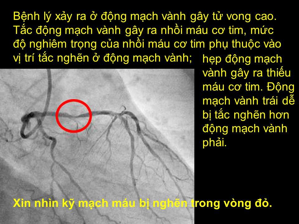 Động mạch vành tim: tim được cung cấp máu bởi động mạch vành trái và phải.