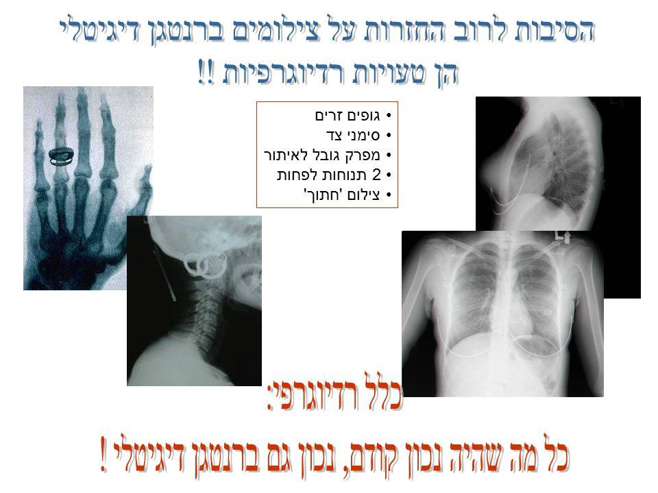 גופים זרים סימני צד מפרק גובל לאיתור 2 תנוחות לפחות צילום חתוך