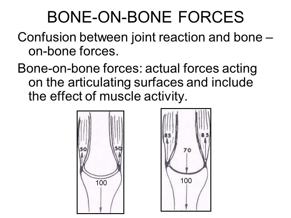 BONE-ON-BONE FORCES Confusion between joint reaction and bone – on-bone forces. Bone-on-bone forces: actual forces acting on the articulating surfaces