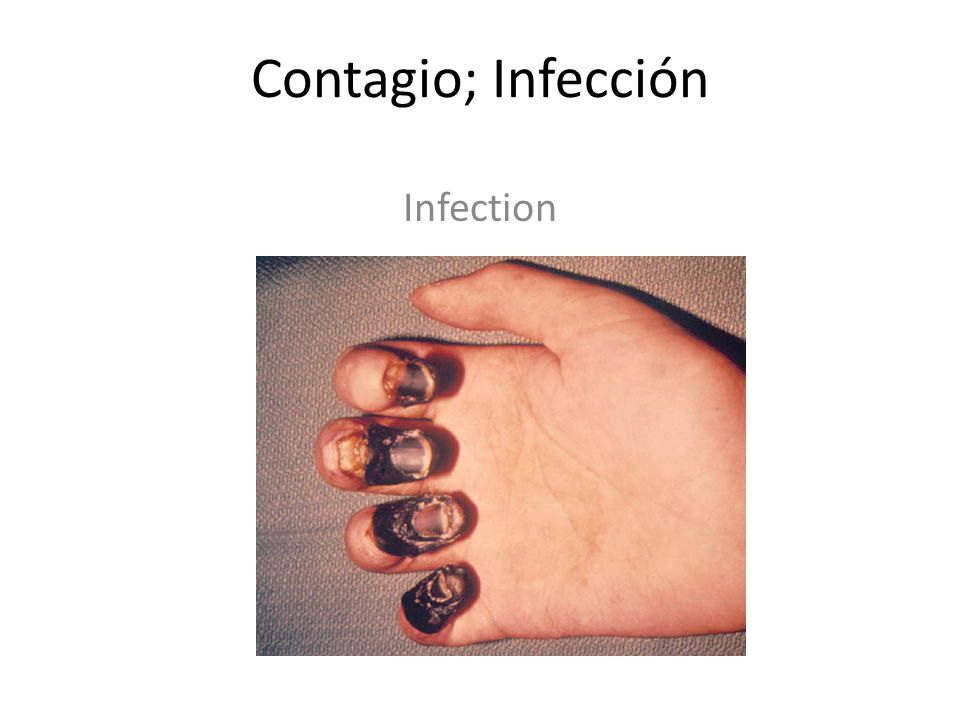 Contagio; Infección Infection