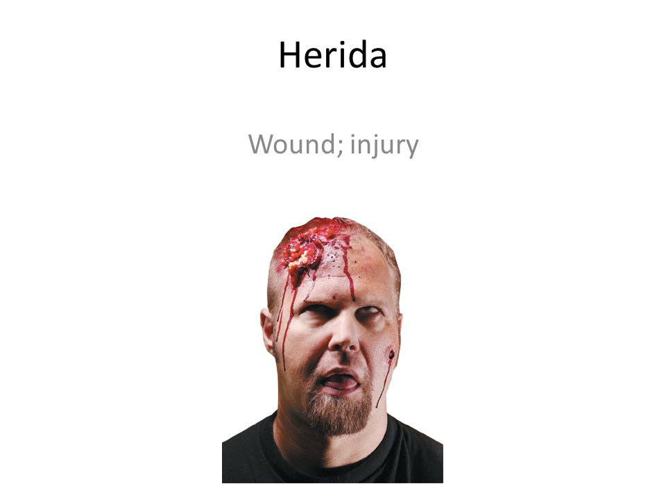 Herida Wound; injury
