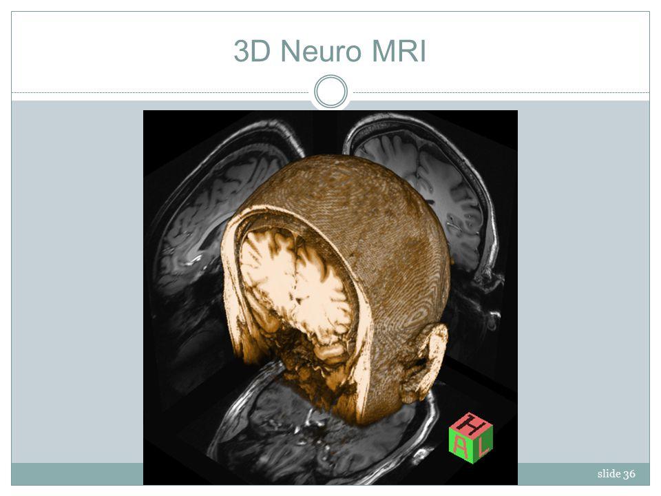 slide 36 3D Neuro MRI