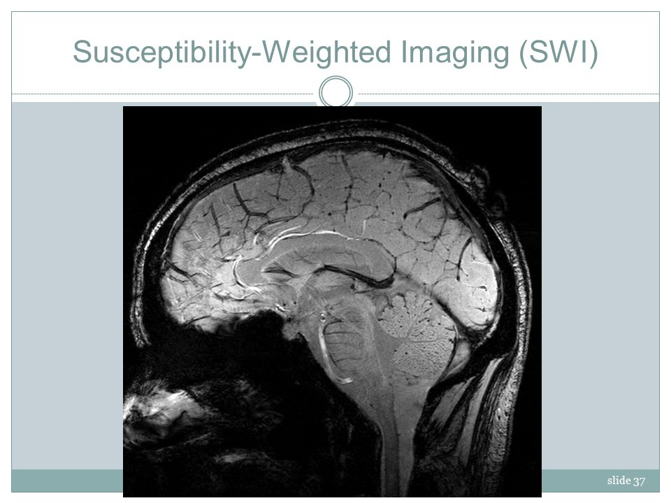 slide 37 Susceptibility-Weighted Imaging (SWI)
