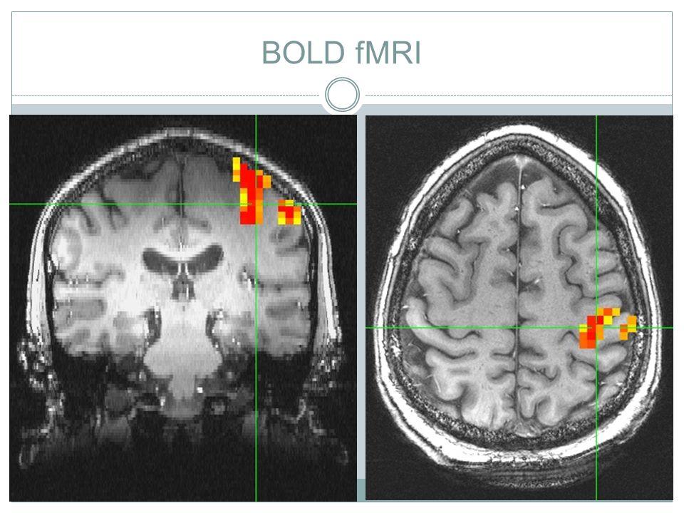 slide 38 BOLD fMRI