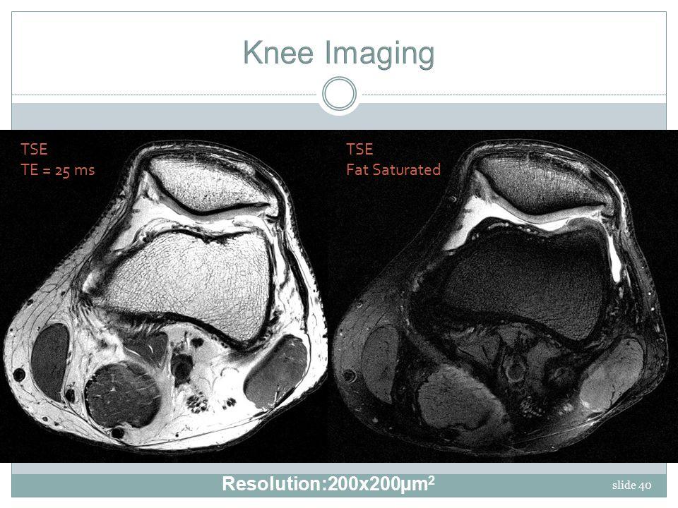 slide 40 TSE Fat Saturated TSE TE = 25 ms Resolution:200x200µm 2