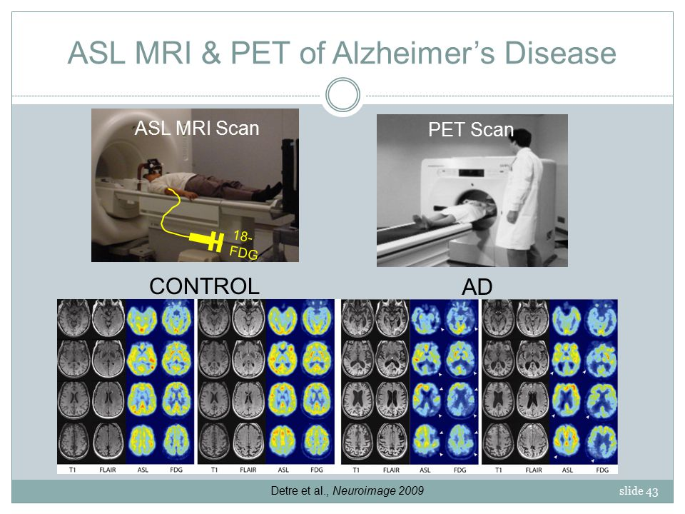 slide 43 ASL MRI & PET of Alzheimer's Disease ASL MRI Scan 18- FDG PET Scan CONTROL AD Detre et al., Neuroimage 2009