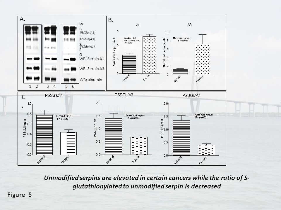 Figure 5 1 2 3 4 5 6 WB: albumin WB: Serpin A1 WB: Serpin A3 WB:PSSGWB:PSSG A. B. C.C. PSSGa IA1) PSSGb(A3) PSSGc(A1) Unmodified serpins are elevated