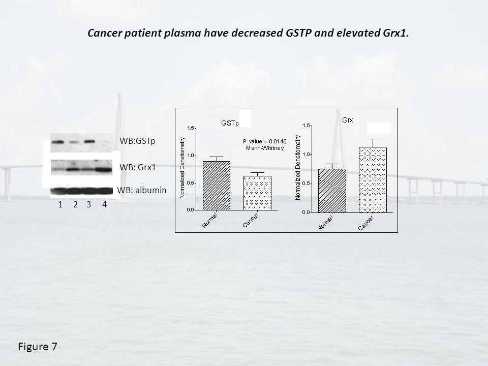 1 2 3 4 WB:GSTp WB: albumin WB: Grx1 Figure 7 Cancer patient plasma have decreased GSTP and elevated Grx1.