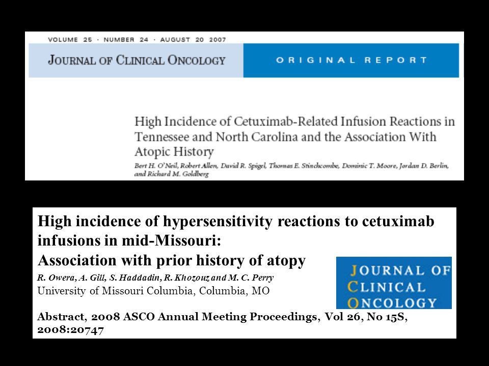 High incidence of hypersensitivity reactions to cetuximab infusions in mid-Missouri: Association with prior history of atopy R.