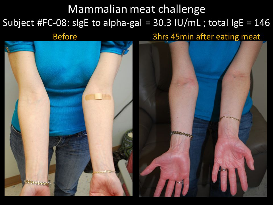 Mammalian meat challenge Subject #FC-08: sIgE to alpha-gal = 30.3 IU/mL ; total IgE = 146 Before3hrs 45min after eating meat