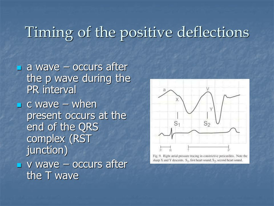 Timing of the positive deflections a wave – occurs after the p wave during the PR interval a wave – occurs after the p wave during the PR interval c wave – when present occurs at the end of the QRS complex (RST junction) c wave – when present occurs at the end of the QRS complex (RST junction) v wave – occurs after the T wave v wave – occurs after the T wave