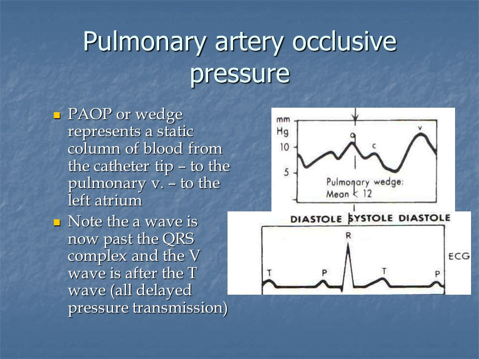 Pulmonary artery occlusive pressure PAOP or wedge represents a static column of blood from the catheter tip – to the pulmonary v. – to the left atrium