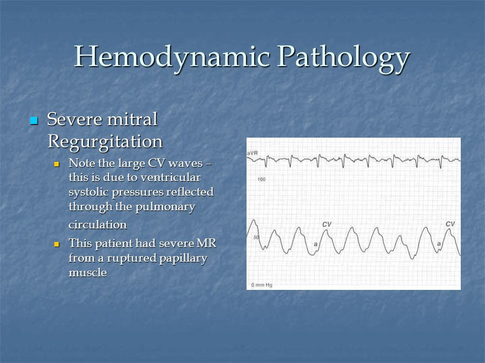 Hemodynamic Pathology Severe mitral Regurgitation Severe mitral Regurgitation Note the large CV waves – this is due to ventricular systolic pressures