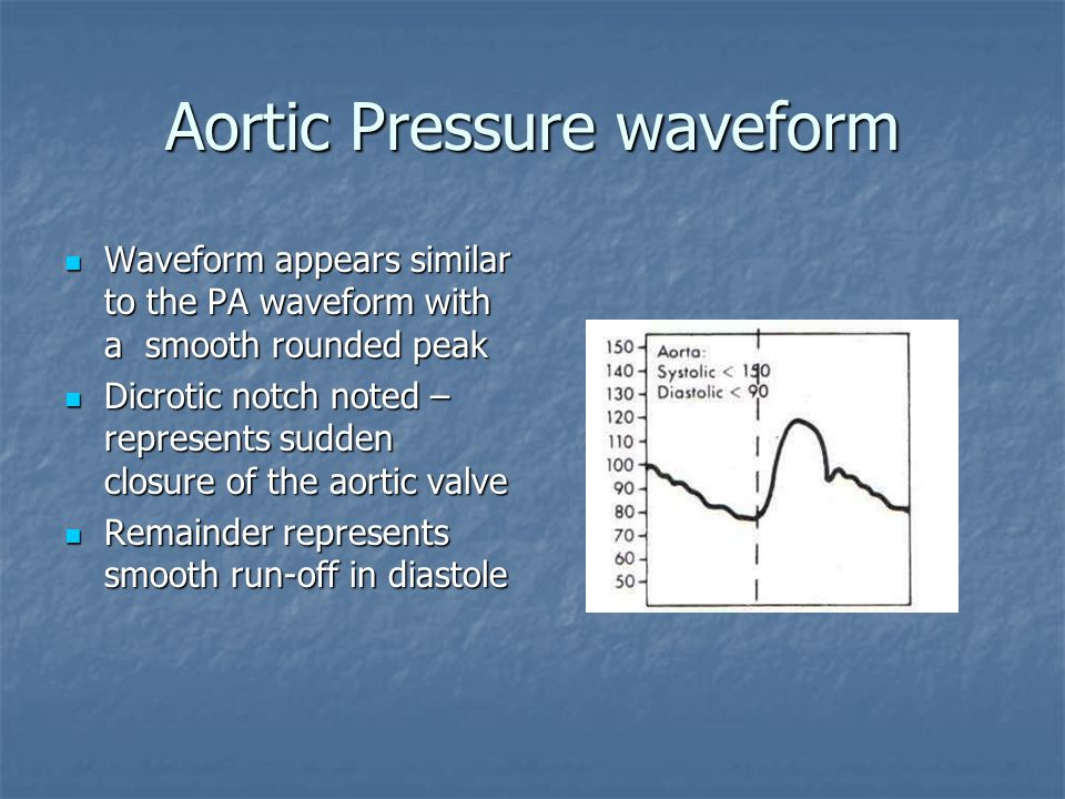 Aortic Pressure waveform Waveform appears similar to the PA waveform with a smooth rounded peak Waveform appears similar to the PA waveform with a smo