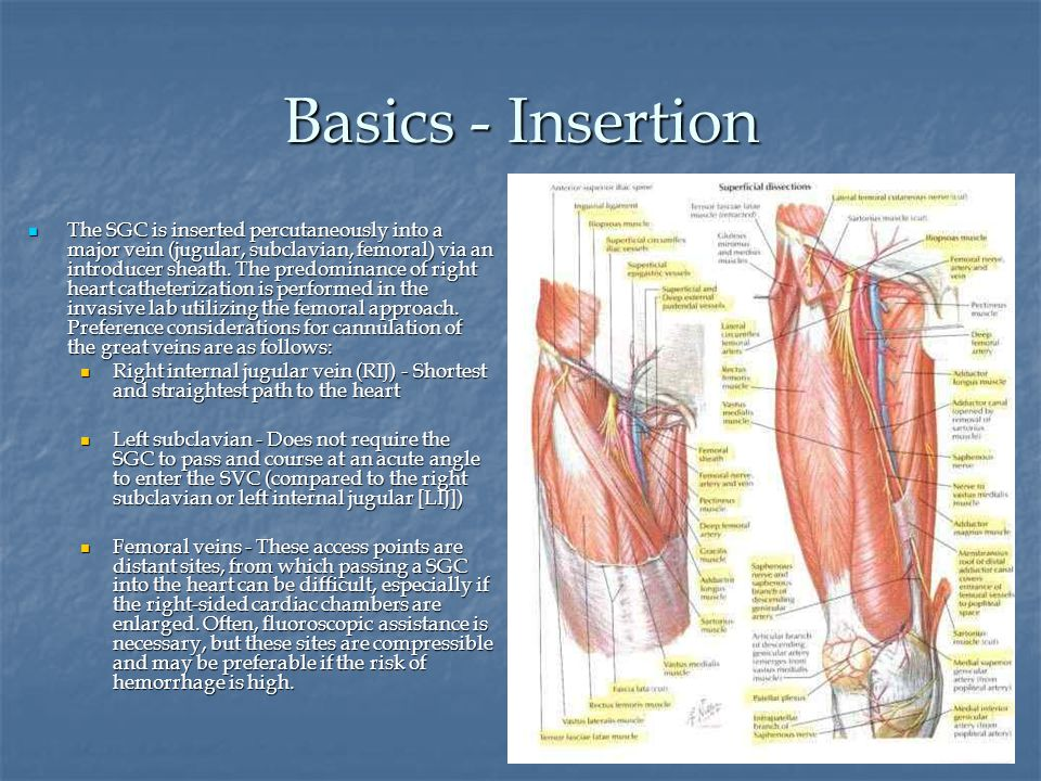 Sheath Insertion A.Puncture vessel by needle A. Puncture vessel by needle B.