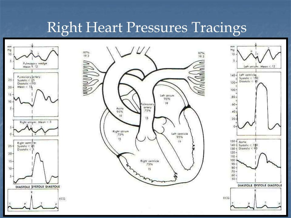 Timing of the PA pressure Peak systole correlates with the T wave Peak systole correlates with the T wave End diastole correlates with the QRS complex End diastole correlates with the QRS complex