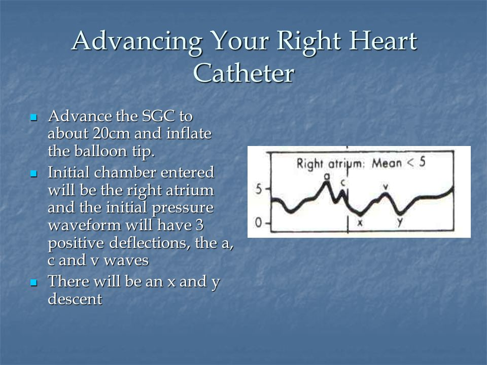 Advancing Your Right Heart Catheter Advance the SGC to about 20cm and inflate the balloon tip.