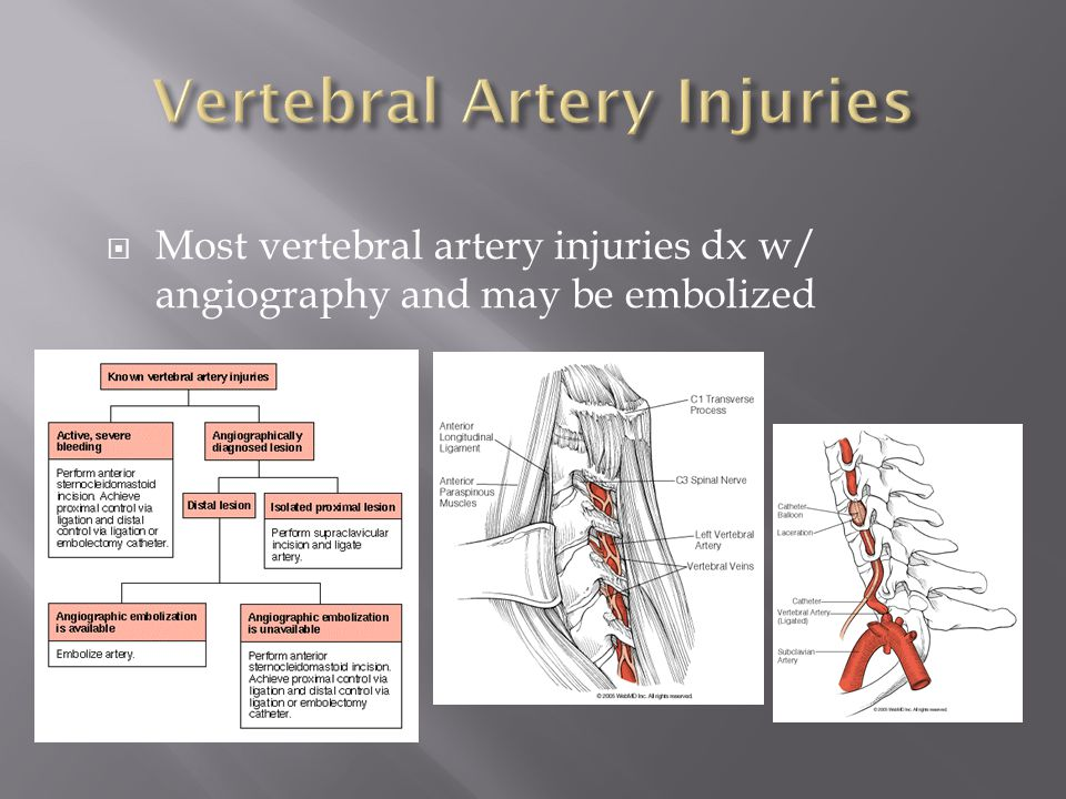  Most vertebral artery injuries dx w/ angiography and may be embolized