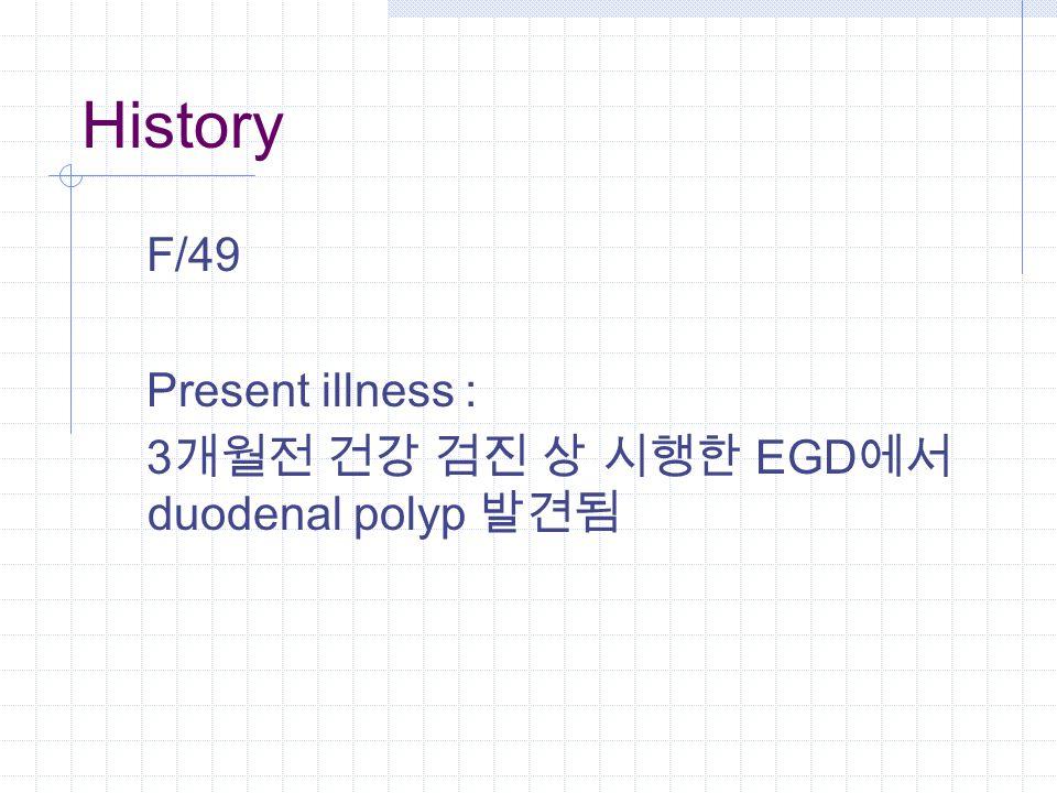 History F/49 Present illness : 3 개월전 건강 검진 상 시행한 EGD 에서 duodenal polyp 발견됨