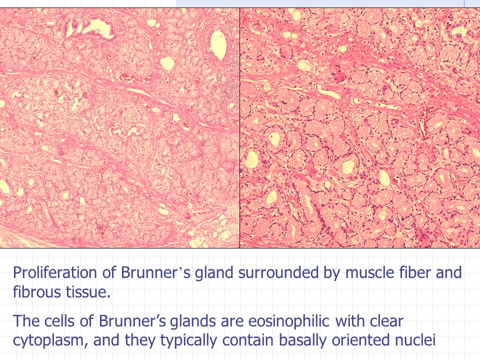 Proliferation of Brunner ' s gland surrounded by muscle fiber and fibrous tissue.